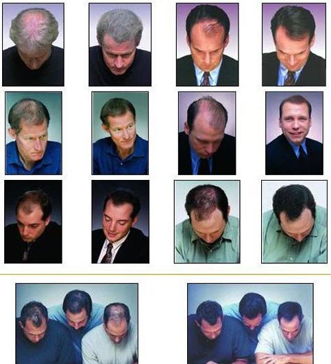 پودر افزایش مو