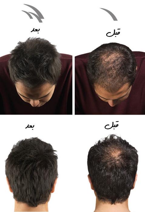 پودر پرپشت کننده موی سر