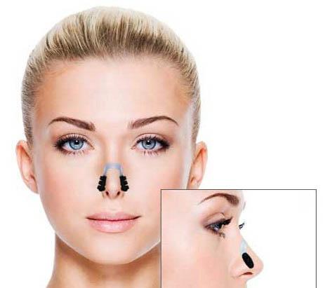 کوچک کننده بینی