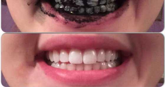 خمیر دندان زغالی اصل برای سفید کردن دندان